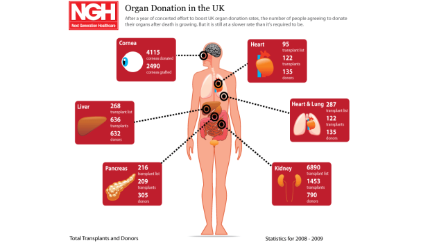 Organ donation in the UK infographic showing demand exceeds supply