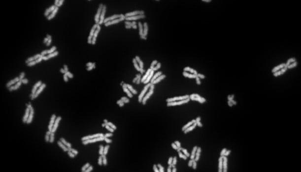 Human female chromosomes