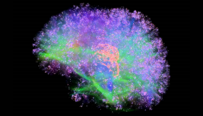 Artificial Brain Simulation