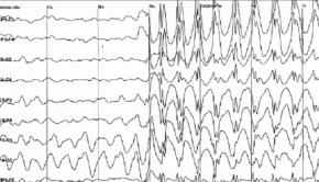 EEG Data